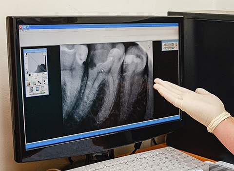 Digital dental x-rays on computer